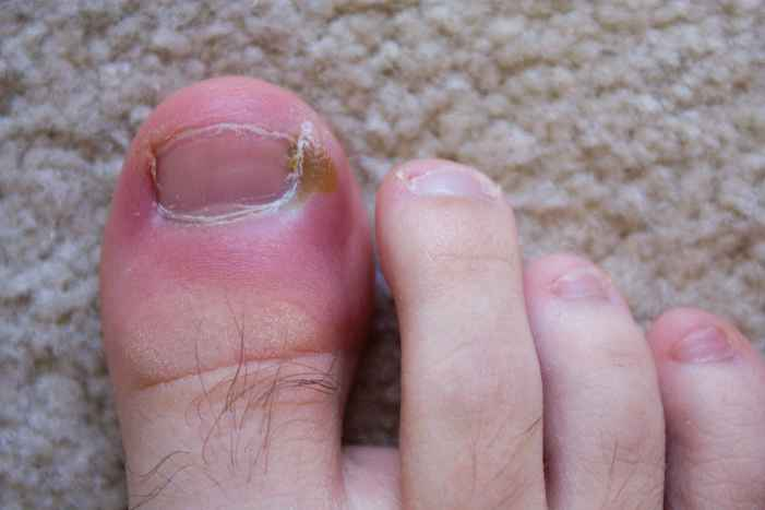 Best Shoes For Ingrown Toenails